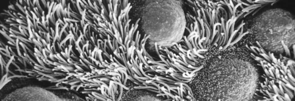 A scanning electron micrograph of cilia in a bronchial wall. The cilia that project from the tops of the epithelial cells help to cleanse the lung by moving trapped particles.