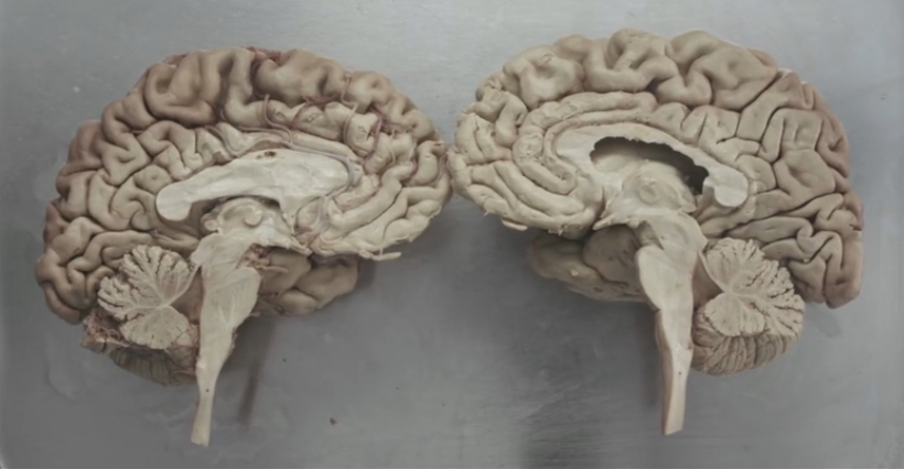 A cross-section model of a human brain.